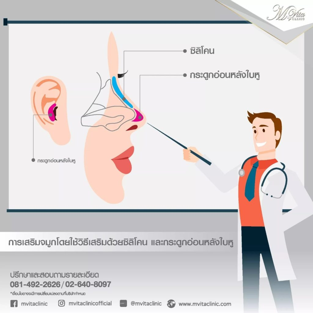 การเสริมจมูกด้วยซิลิโคนร่วมกับกระดูกอ่อนหลังใบหู คือ