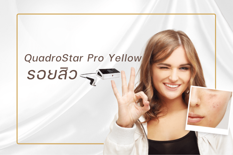 QuadroStar Pro Yellow รอยสิว